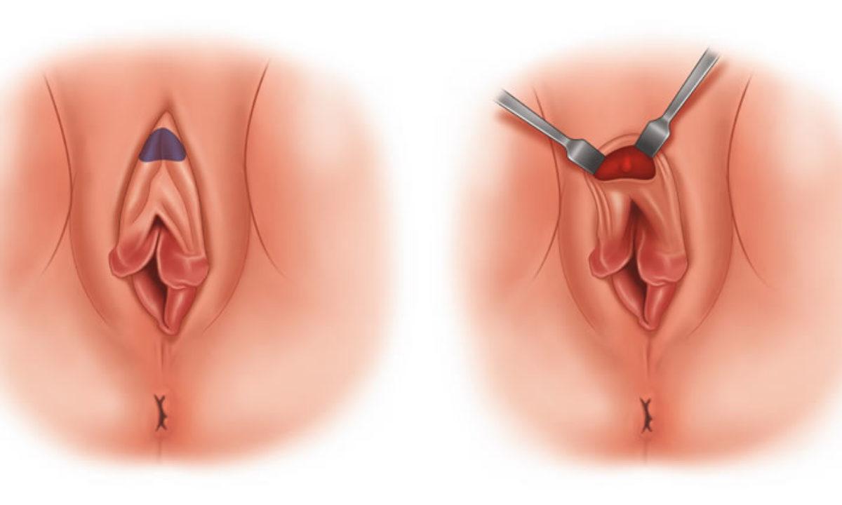 Hudoplastika emeliyyati
