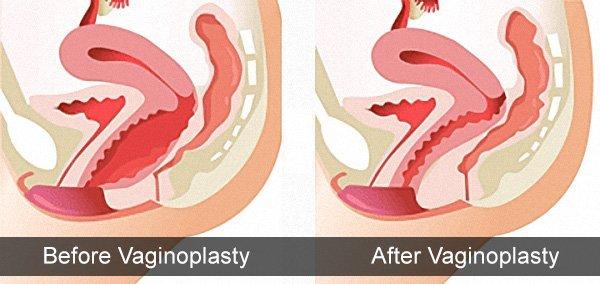 Vaginoplastika emeliyyati